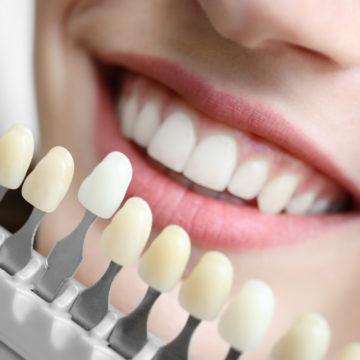 Young woman choosing color of veneers at dentist